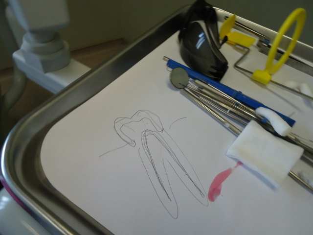 doctor's sketch of my root canal and cracks in teeth causing pain inflamed gums linda randall 26 feb 2014