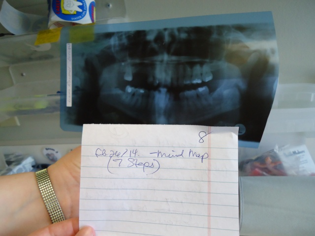front teeth cavities dental xrays linda randall feb 26 2014 mind map 7 steps #PD14 during teeth cleaning